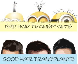 Failed hair transplants and how to avoid them
