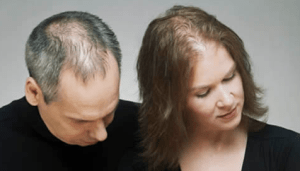 Telogen Effluvium - Stress hair loss