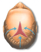 Scalp reduction surgery