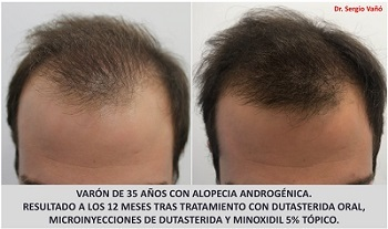 Best Treatment For Male Hair Loss | Hairsjdi org