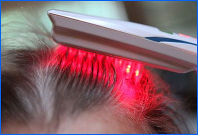 10 Most Effective Hair Loss Cure and Baldness Treatments No One Told