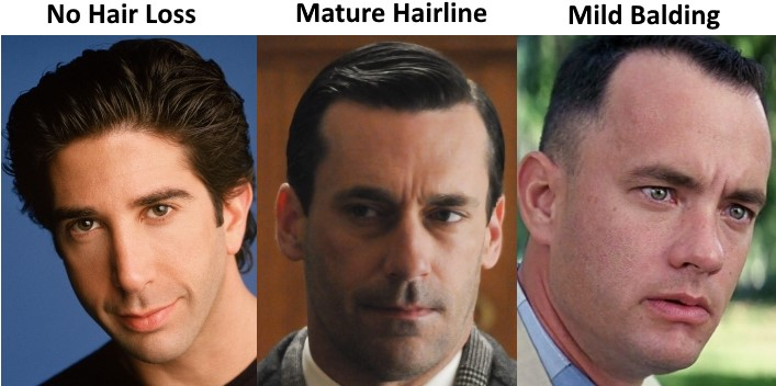 The Mature Hairline Explained Are You Balding Or Maturing