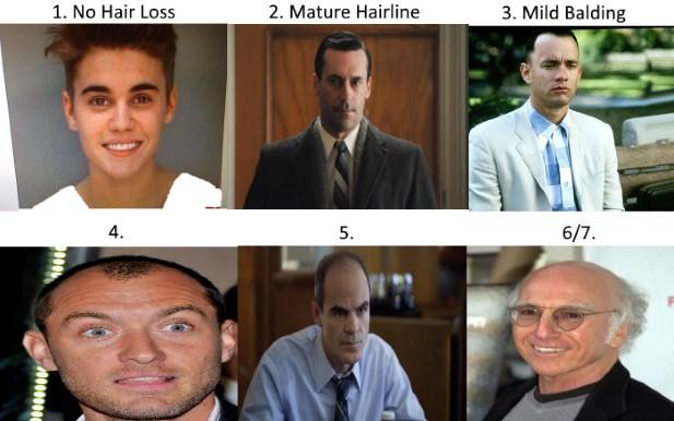 Mature hairline mistaken for baldness curious