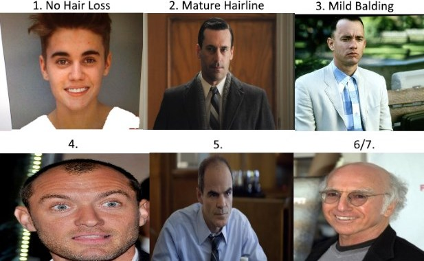 Norwood Scale Assess Your Hair Loss With Pics Celebrity Examples