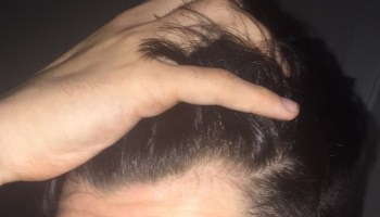 mature hairline mistaken for baldness