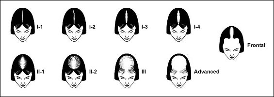 womens hair loss treatment