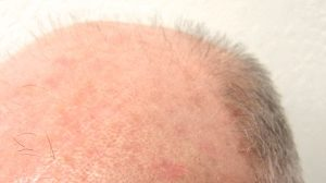 The Science of Thinning Hair