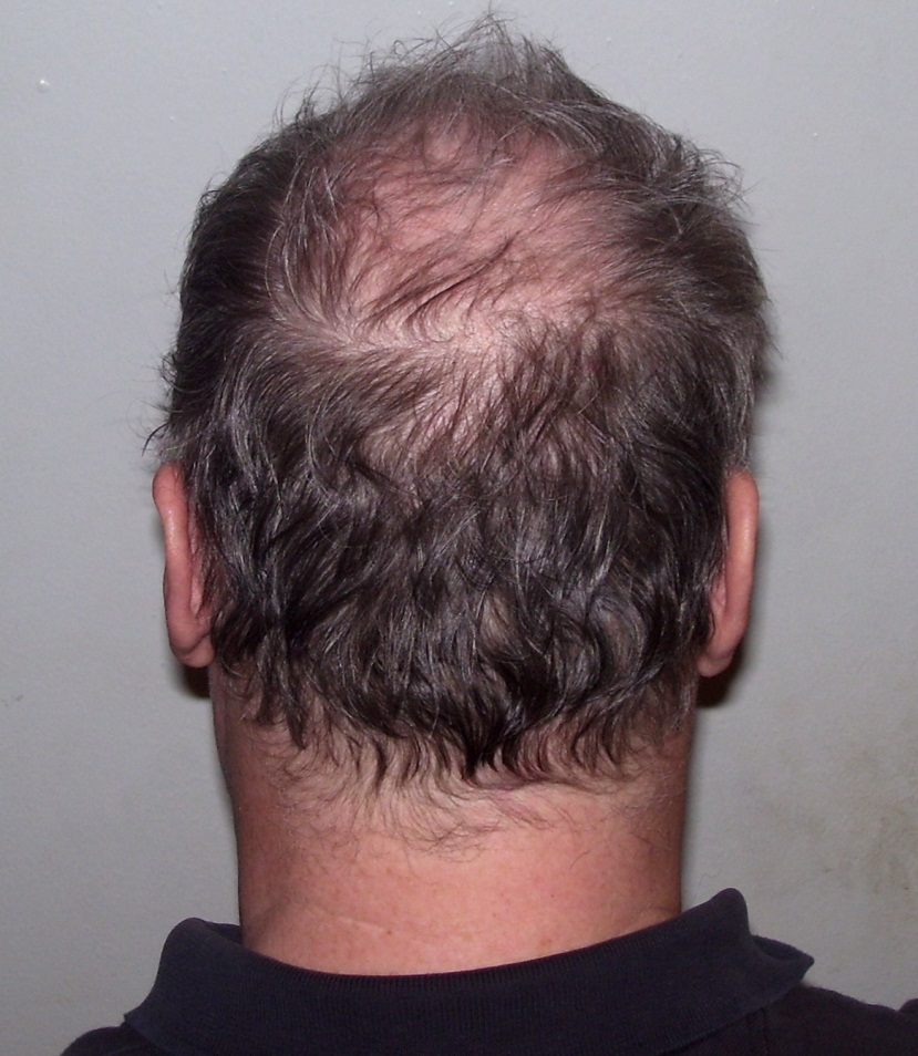 Hair Loss Causes Hair Transplant Center Houston Hair Transplant Dr Jezic