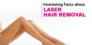 Laser Hair Removal Procedure, And Amazing Facts