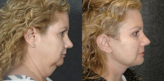 Neck Lift Non-Surgical Treatment And FAQ
