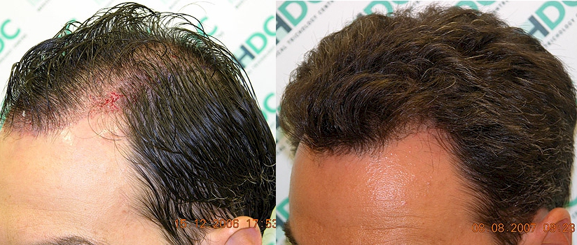 Saw palmetto with beta sitosterol hair loss