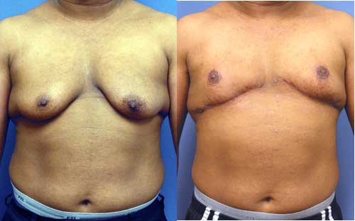 male-breast-reduction-treatment-clinic-india