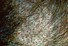 Tinea Capitis Dallas Fungal Infection Of The Scalp Plano TX