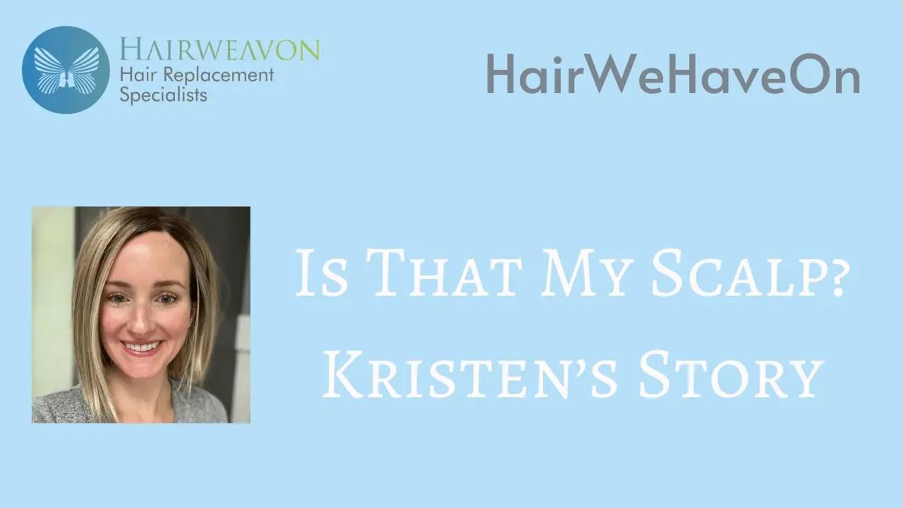 Kristen's Alopecia Story