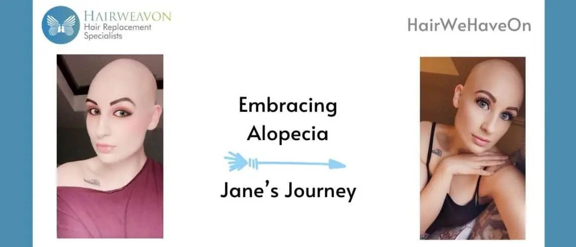 Embracing Alopecia | Jane's Hair Loss Journey