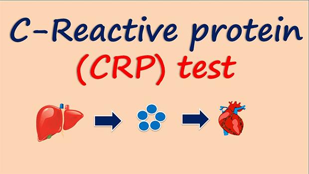 زندگی سے پیار ہے تو.. جانیں CRP ٹیسٹ کیا ہے اور یہ کیوں لازمی کروانا چاہیے؟ 1