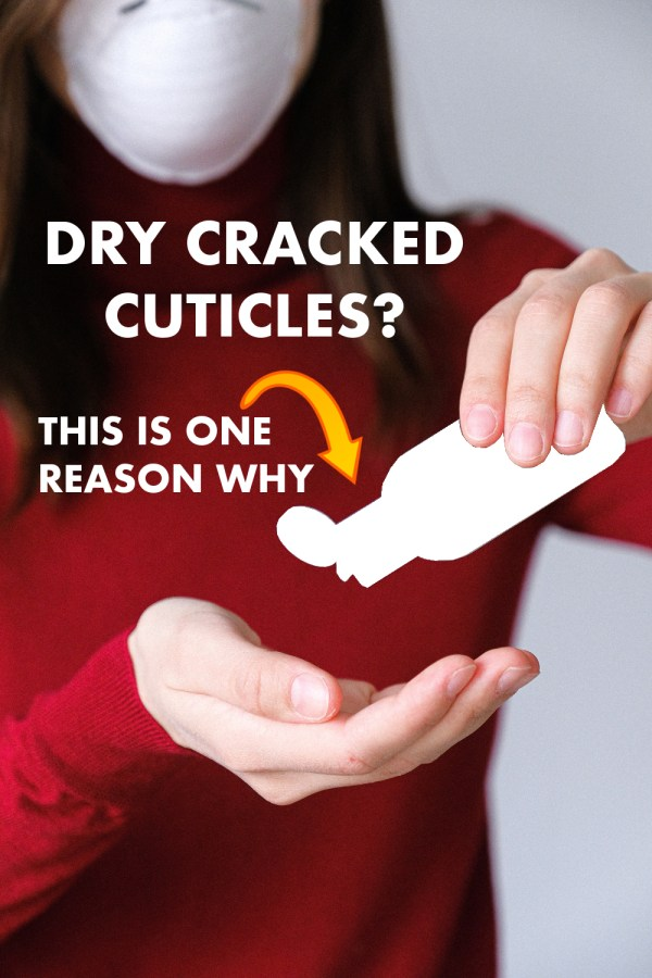 Dry Cracked Cuticles – This Is One Reason Why