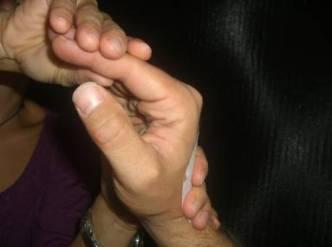 Spannungsfreies Durchbewegen der Grundgelenke in S 0-40-bei gestreckten Hand und Fingergelenken - Flexionsstellung