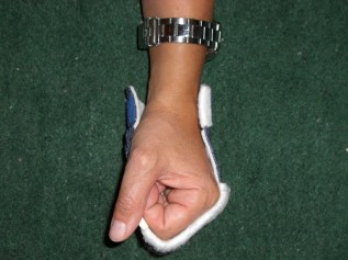 Fausthandschuh aus Thermoplast zur forcierten Beugung