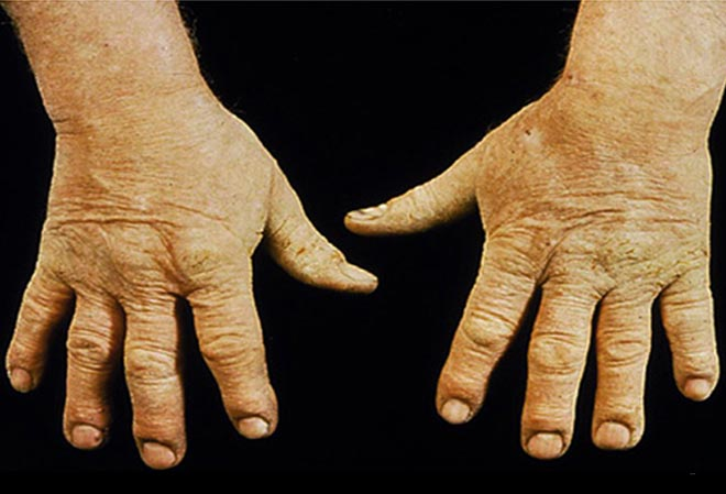 Eczema in hands - irritant contact dermatitis.