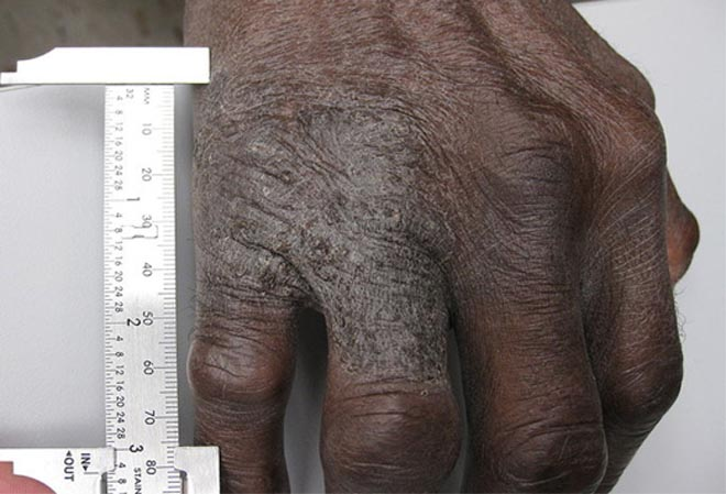 Eczema in hands - lichen simplex chronicus.