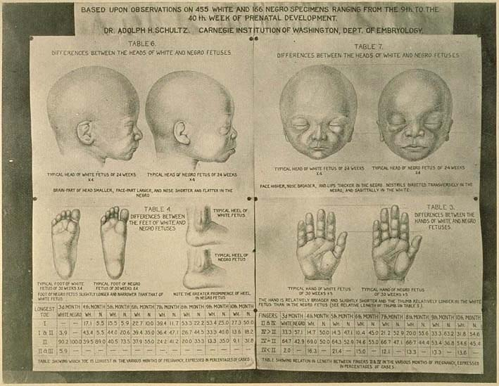 ILLUSTRATION: Differences between white and negro fetuses!
