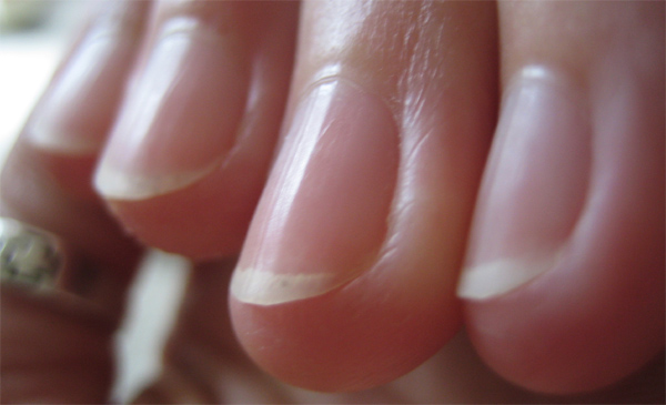 Vertical Ridges in Fingernails - Nail ridges: causes ...
