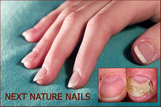 Onychomycosis is a fungal infection causing deformity of the fingernail.