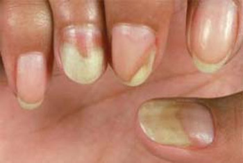 Yellow Nail Causes Remes Syndrome