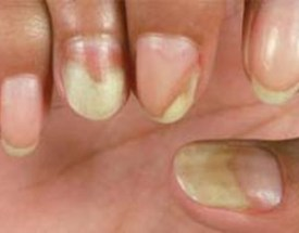 Whitening Toothpaste Yellow Nails Using
