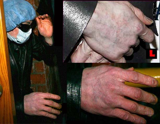 Michael Jackson's fingernails spotted earlier this year (february, 2009).