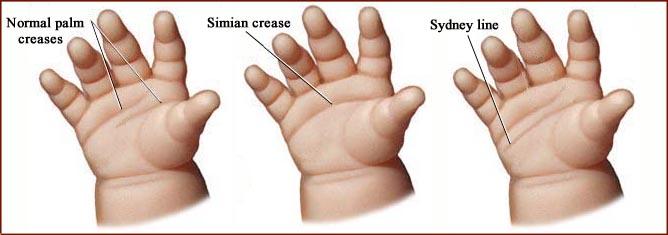 Single palmar crease genetic disorders