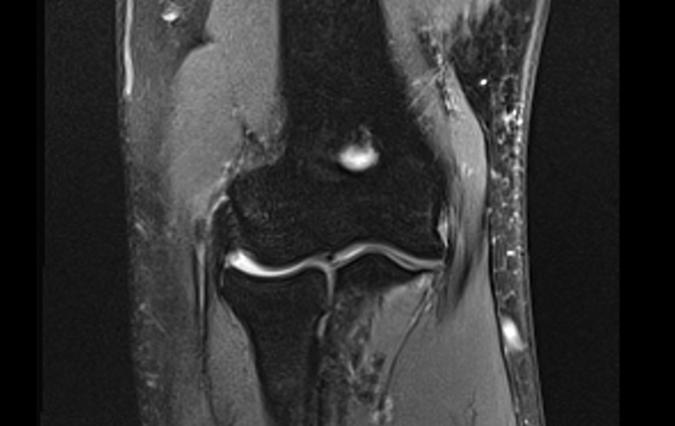 GOLFER'S ELBOW (MEDIAL EPICONDYLITIS) | Hand Surgery Source