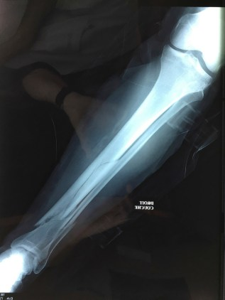 Long fracture