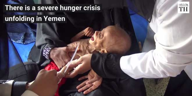UN Warns 18.4 Million Yemenis Expected to face Starvation by End of 2018, Herland Report