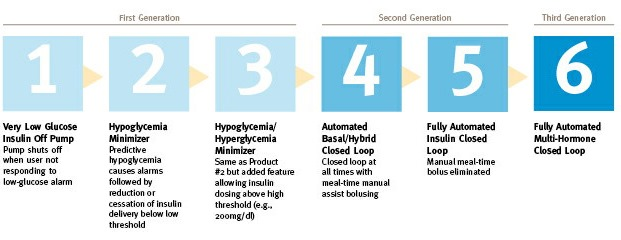 "6 stages of ""Artificial Pancreases"""