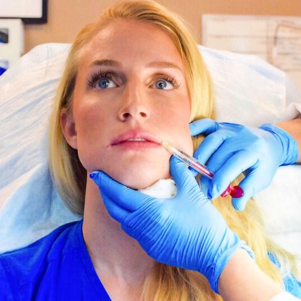 volbella juvaderm injections lip fillers