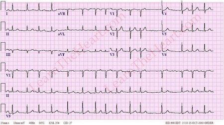 ЭКГ, ч. 3a. Пароксизмальная мерцательная аритмия и ...