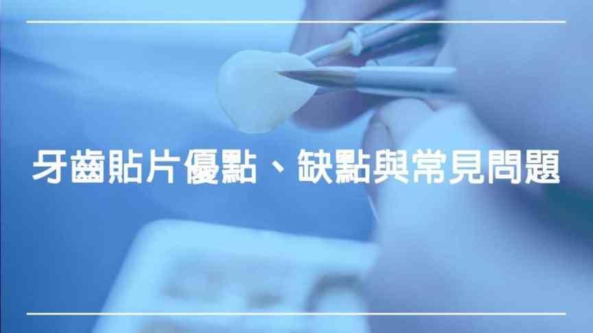 牙齒貼片:了解優點、缺點與常見問題