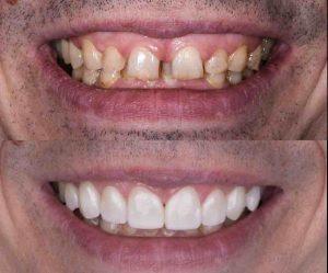 牙齒貼片使用案例