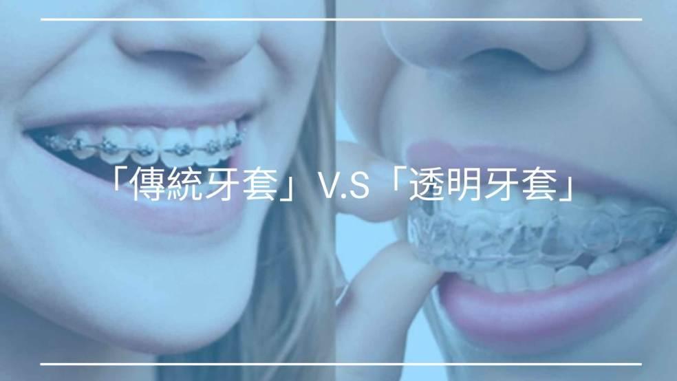 「透明牙套」與「傳統牙套」優缺點比較