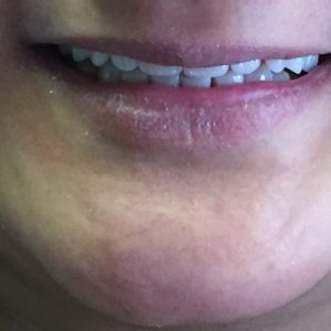 After denture partial in Fallston MD