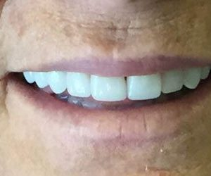After smile makeover in Fallston, MD