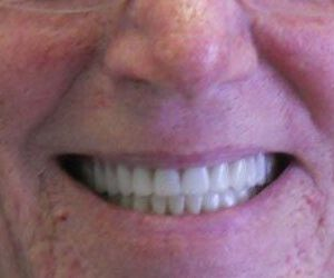after dentures and crowns procedure