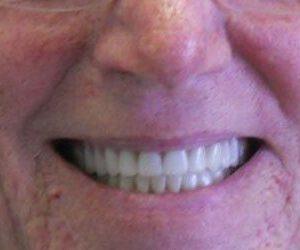 after dentures and crowns procedure