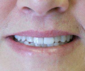 Dental veneers at Harford County Dentistry