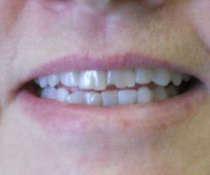 Dental veneers in Harford County, MD