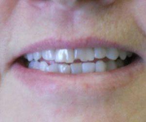 Dental veneers in Harford County, MD