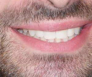 after Invisalign in Fallston, MD