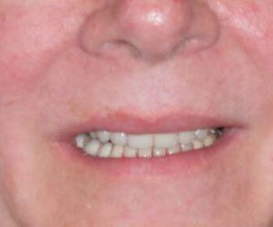 after porcelain veneers with Dr Melissa Elliott